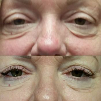 Chronic Pain St. Petersburg FL AMI Cosmetic Lashes